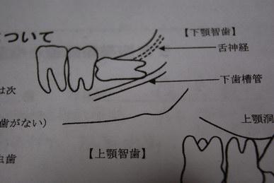 親知らず(智歯)抜歯・下顎埋伏智歯の抜歯について