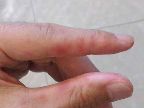 副作用(発疹・人差指と親指)